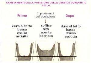 cervice-11